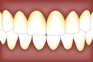 More about Invisalign 11