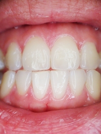More information about Dental Implants 28