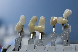 Spectacular Dental Implants 5